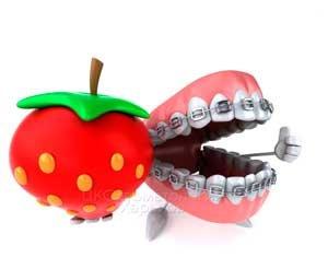 Брекеты плюс виниры. На что рассчитывать в случае лечения  в стоматологии Харькова?