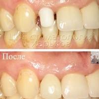 Оптимальное решение в случае если разрушен передний зуб