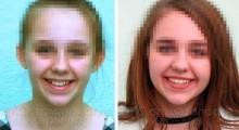 Ретенированный зуб. Лечение керамическими брекетами в ЦКС