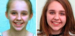 Ретинированный зуб. Лечение керамическими брекетами в ЦКС