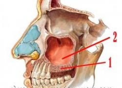 Аугментация альвеолярного отростка с одновременным проведением синус лифтинга