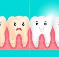 Виниры вместо лечения брекетами, стоматология в Харькове