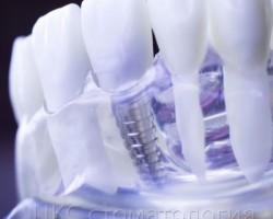 Выбирай для себя! Четыре лучших варианта проведения зубной имплантации