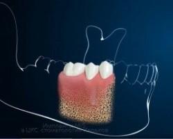 Зубной или дентальный имплант, как это устроено. Какой имплант выбрать для себя?