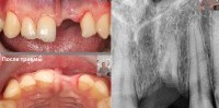Аугментация - наращивание кости челюсти