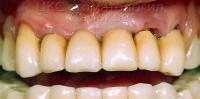 Срок службы. Гарантии на зубные протезы.