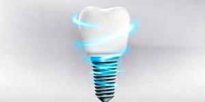 Клинические случаи зубной имплантации в ЦКС, что может харьковская стоматология?