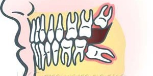 Удаление зуба мудрости, инструкции для пациентов