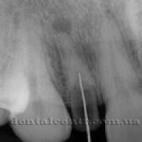 Одноэтапная немедленная (моментальная) зубная имплантация.