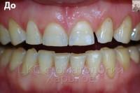 Эстетическое восстановление зубов керамическими винирами