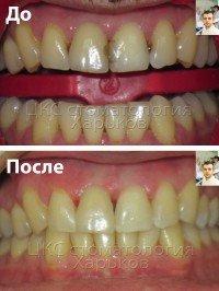 Фотополимерные реставрации зубов в линии улыбки
