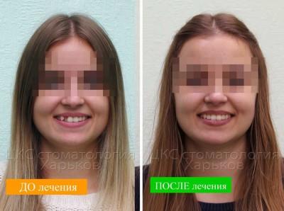 Лечение кривых зубов. Керамические и металлические брекеты в действии