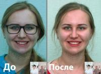 У Вас кривые зубы? Выбирайте брекеты!