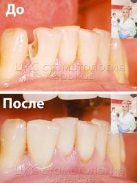 Современная стоматология — это красивые реставрации зубов и лечение без боли в  ЦКС Харьков