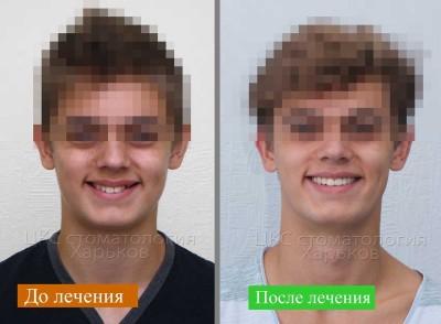 Лечение брекетами без удаления зубов, современное лечение в Харькове