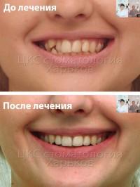 Лечение брекетами взрослых пациентов в Харькове