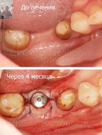 Наращивание костной ткани для имплантации зубов