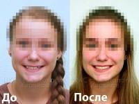Неровные зубы. Обратное перекрытие