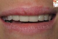 Отбеливание зубов и керамические виниры - это модно!