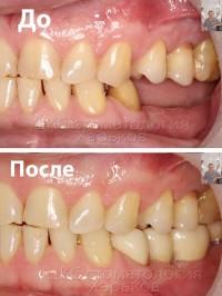 Протезирование с применением зубных имплантатов