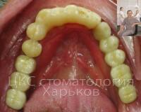 Протезирование с использованием зубных имплантов