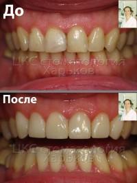 Реставрации фронтальных зубов