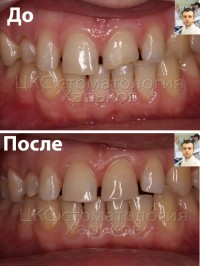 Реставрации зубов должны быть максимально естественными