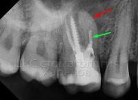 Резекция верхушки корня - лечение проблемного зуба