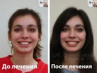 Ровные зубы делают улыбку привлекательной