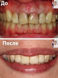 Сделать красивые зубы за отпуск