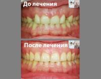 Сильно неровные зубы. Выручают брекеты