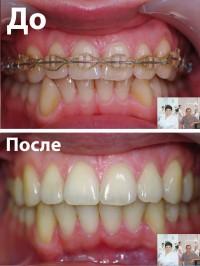 Обращение пациента с просьбой закончить ортодонтическое лечение