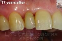 Срок службы стоматологических конструкций