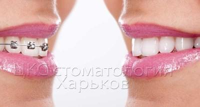 Стоит ли удалять зубы при дистальном прикусе?
