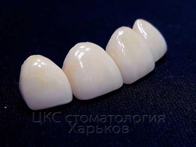 Стоп золотые зубы