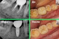 Зубная имплантация без хирургических разрезов, Стоматология Харьков