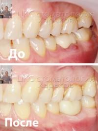 Удаление разрушенного зуба и одномоментная установка имплантата