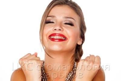 Установить брекеты и заняться улыбкой можно в любом возрасте, если у Вас хороший пародонтолог