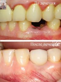 Установка имплантата после удаления зуба