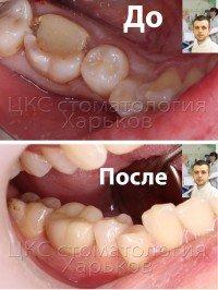 Восстановление разрушенного зуба циркониевой вкладкой и коронкой из диоксида циркония