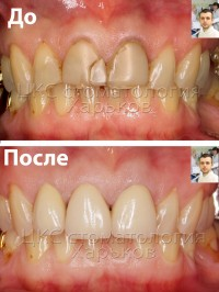 Восстановление зубов имеющих большие дефекты