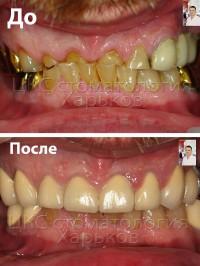 Восстановление зубов в случае патологической стираемости