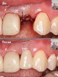 Временный зуб - установка в стоматологии ЦКС