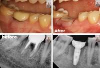 Операция установки зубного имплантата  без скальпеля и разрезов